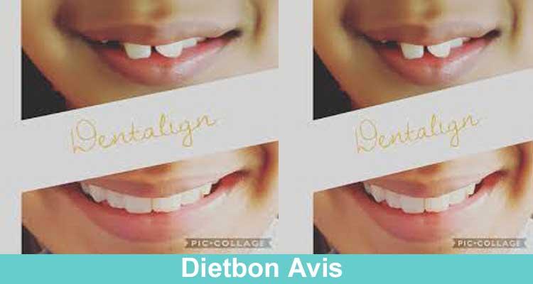 Dentalign Avis 2021